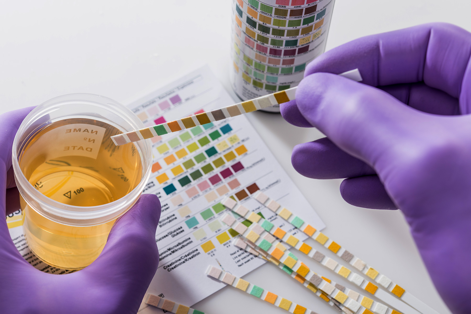 Can you fail a drug test when using delta-8 THC? How do drug tests work?
